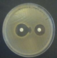 Агар Мюллера-Хинтона для определение восприимчивости к антибиотикам